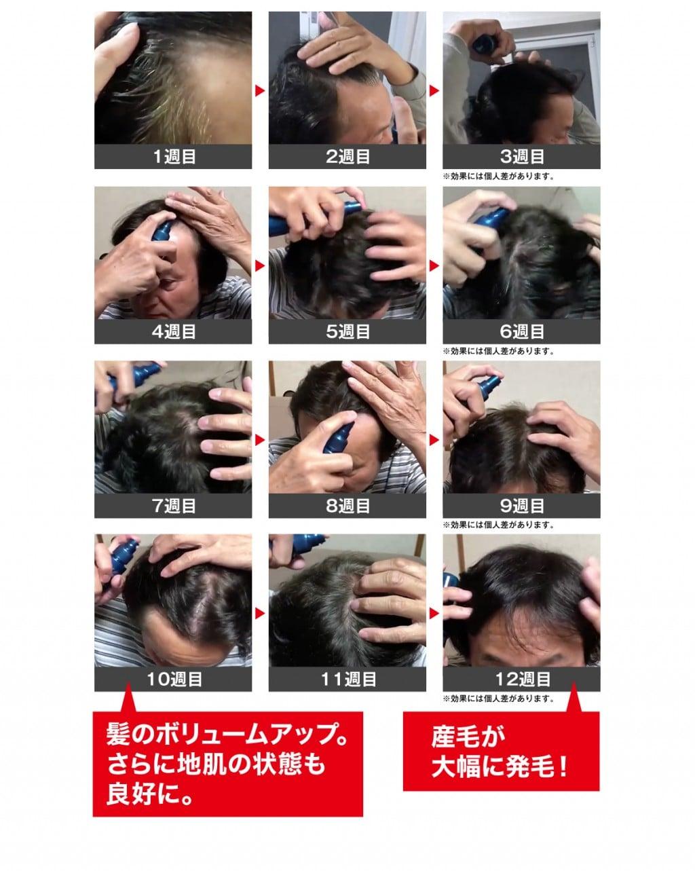 ニューモ育毛剤の体験談レビュー