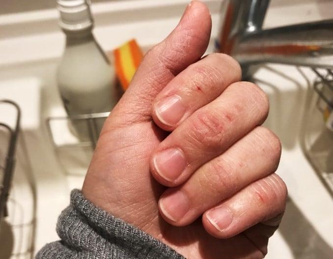 シロジャム 手の乾燥 手荒れ