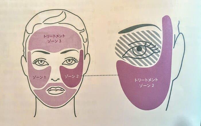 トリア美顔器の使い方